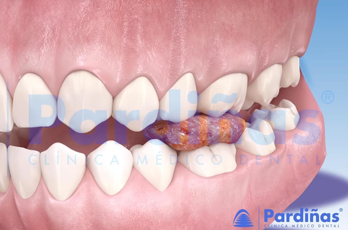 Problema de  empastes – A obturación dental desbordada