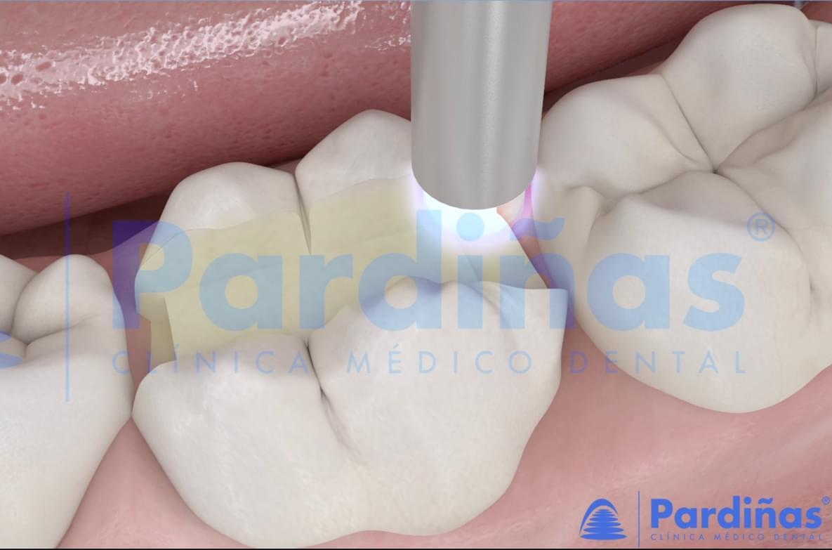 Imágen del proceso de incrustación dental